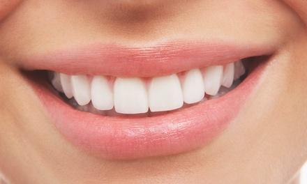 Dental Veneer with Polish